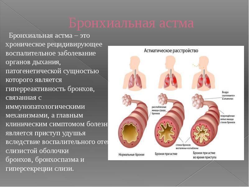 Острый бронхит у детей: причины, механизм развития, симптомы, диагностические меры, способы лечения, опасность осложнения заболевания, профилактические меры