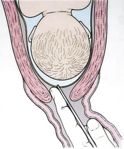 Амниотомия при родах: показания и последствия. зачем прокалывают плодный пузырь перед родами без схваток, больно ли это и через сколько времени после процедуры рожают