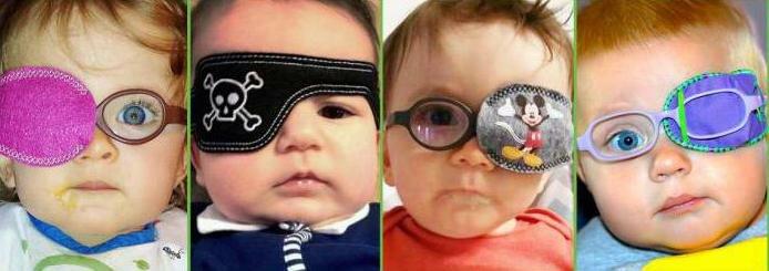 Косоглазие расходящееся - причины и лечение у детей и взрослых