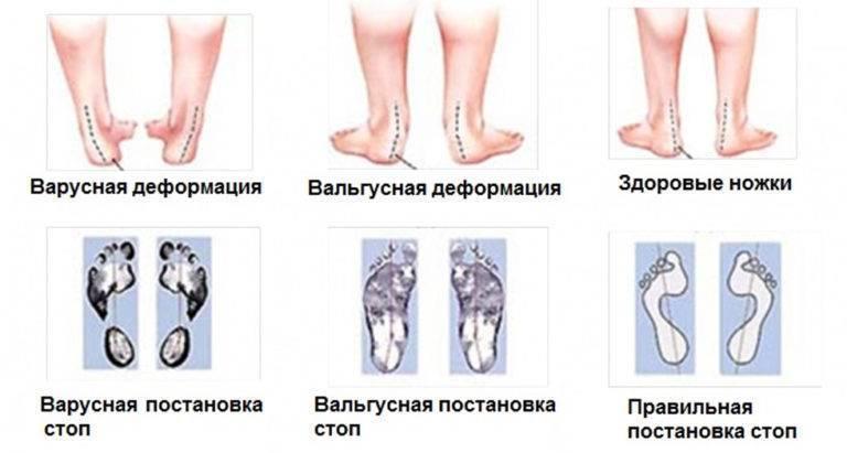 Причины и методы лечения варусного искривления стоп