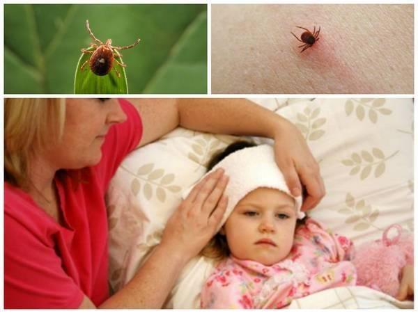 Симптомы укуса клеща у ребёнка: первые признаки и не только на фото