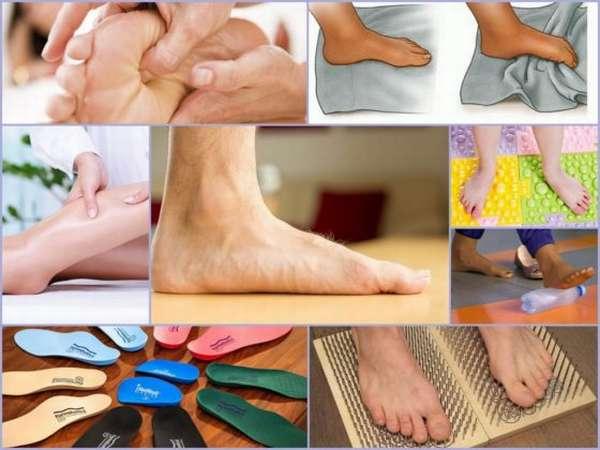 Плоскостопие у детей – причины, профилактика и методы лечения
