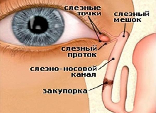 Дакриоцистит глаз у новорожденных: фото, лечение и массаж от комаровского