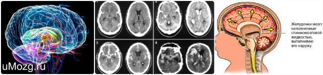 Последствия увеличения желудочков головного мозга у новорожденных