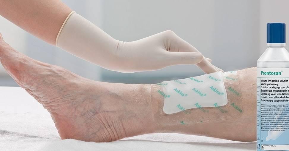 У ребенка после падения мокнущая рана – как лечить ссадину и чем ее обработать? - все о суставах