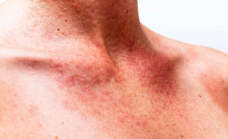 Сыпь при геморрагическом васкулите у детей фото