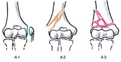 Закрытый чрезмыщелковый перелом плеча