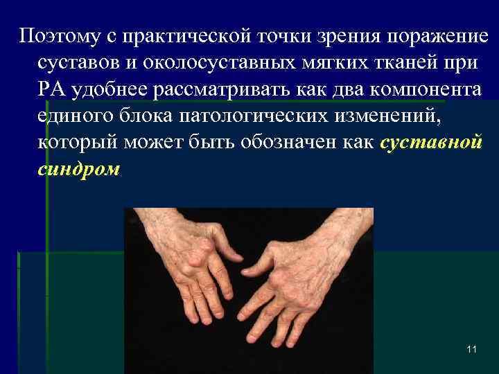 Ювенильный ревматоидный артрит у детей: симптомы, прогноз на будущее и лечение