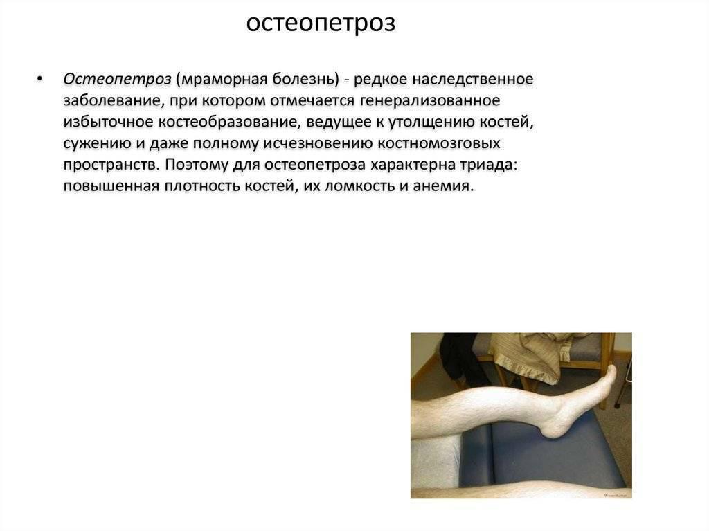 Мраморная болезнь: симптомы и лечение. остеопетроз (смертельный мрамор). остеопетроз - что это такое?