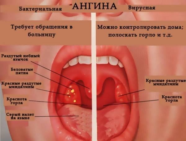 Катаральная ангина у детей: лечение, симптомы тонзиллита