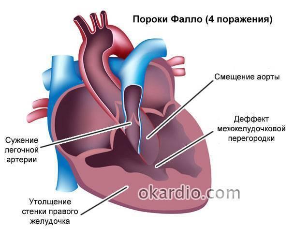 Шумы в сердце у новорожденного ребенка, грудничка: причины — заболевания сердца