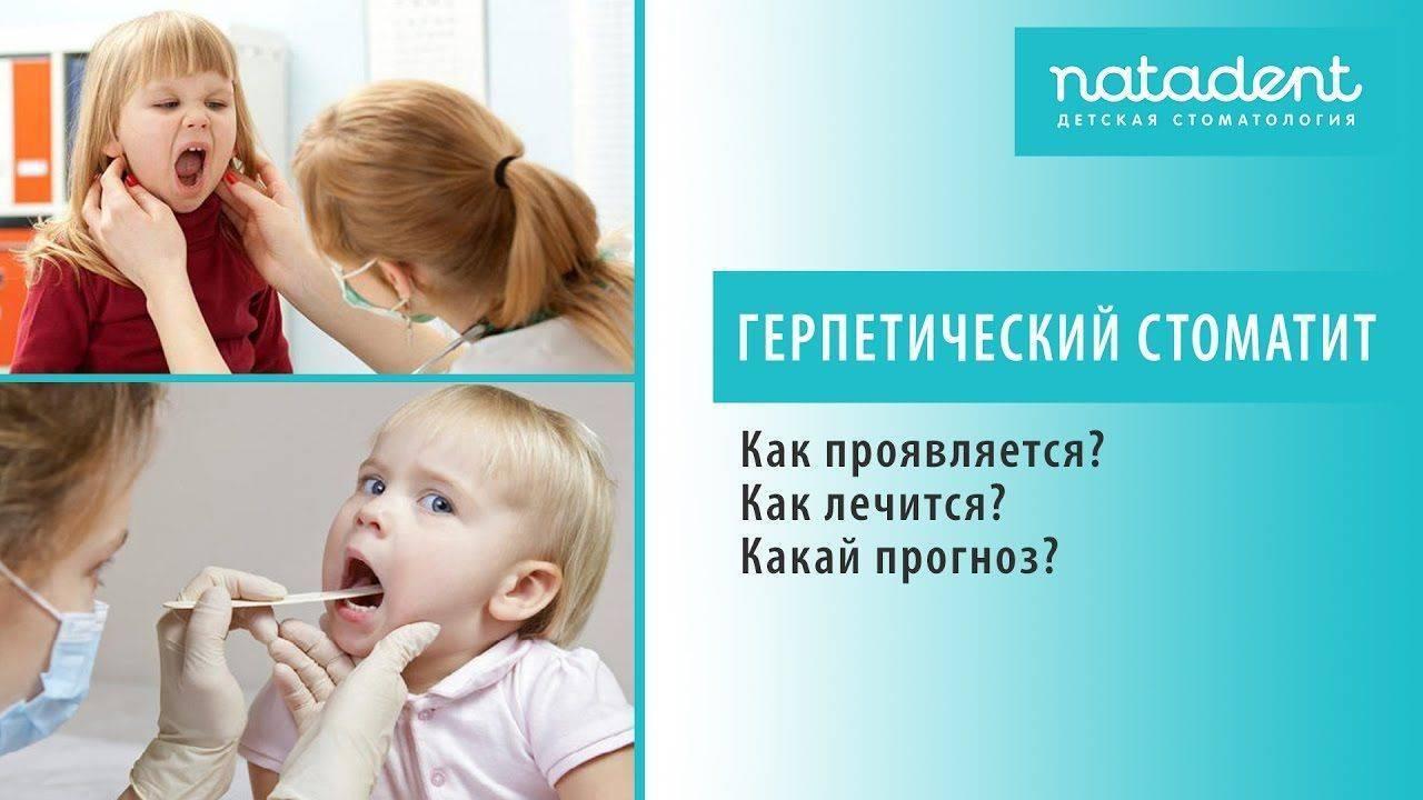 Герпетический стоматит: лечение герпесной патологии у детей и взрослых, симптомы, чем лечить