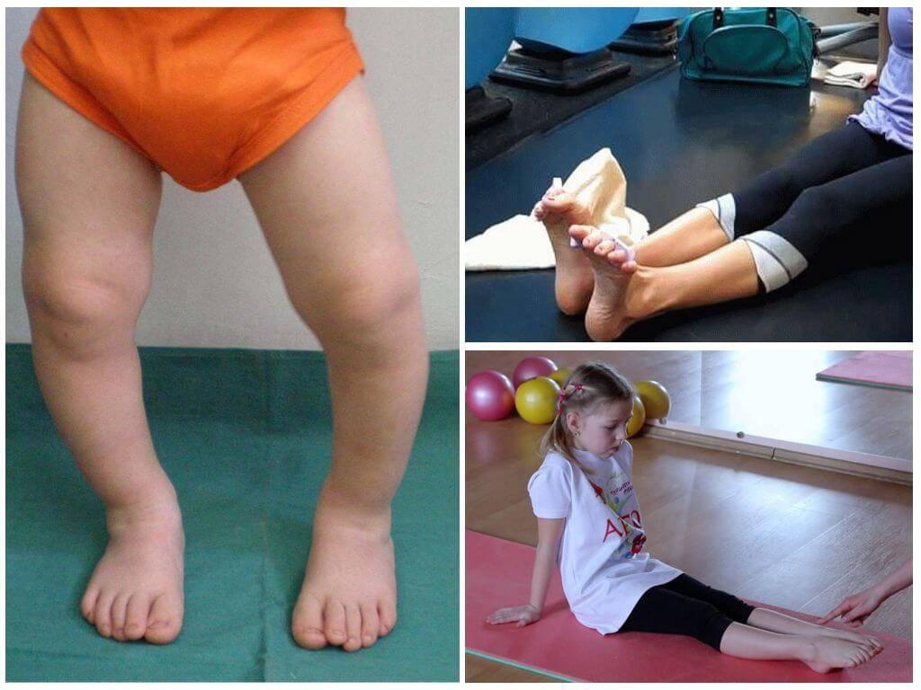 Лфк при вальгусной деформации ног у детей: индивидуальный подбор упражнений в центре реабилитации в москве