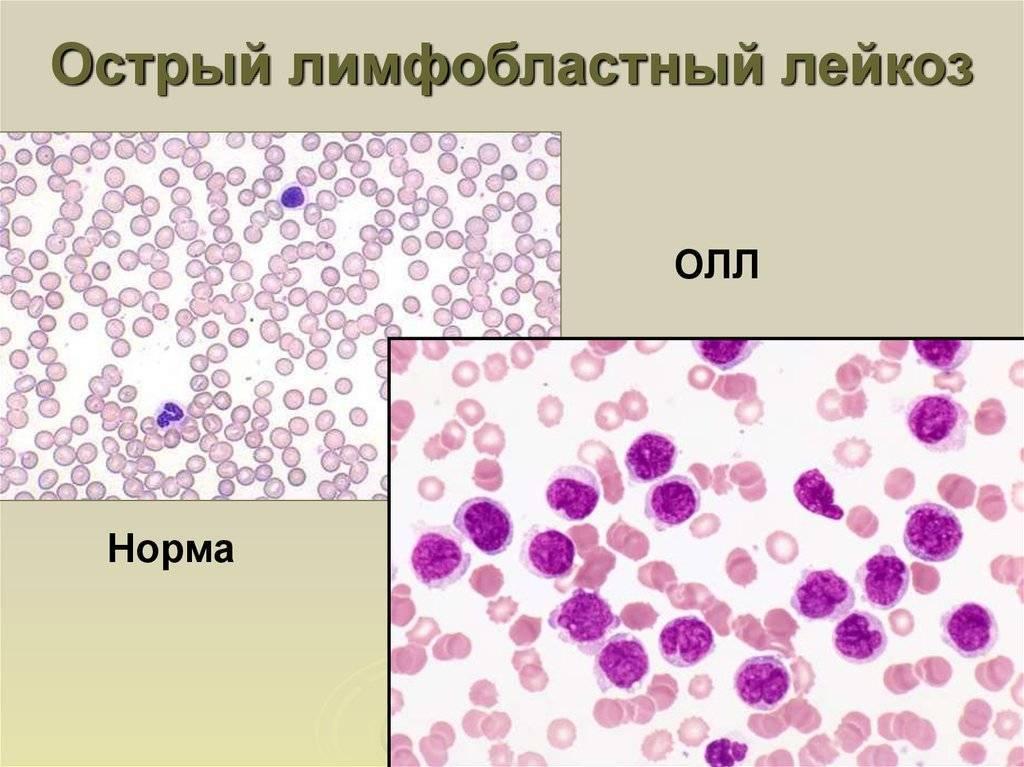 Острый лимфобластный лейкоз у детей, разновидности, перспективы лечения