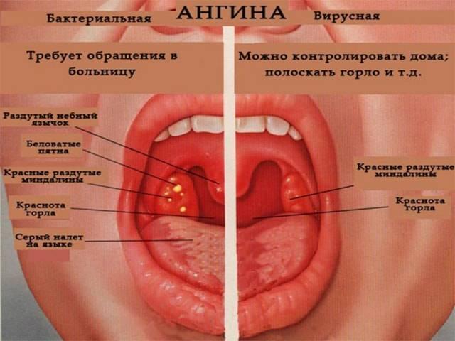 Заболевание горла и гортани: симптомы, признаки и лечение
