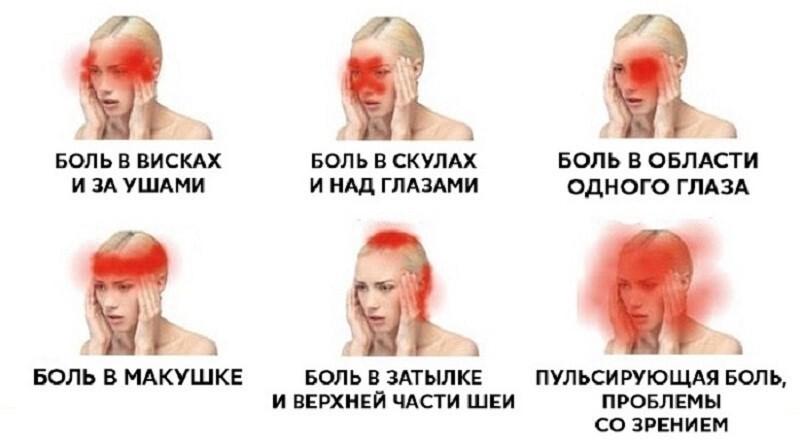 Болит голова у ребенка: что делать, причины головных болей в области лба, затылка