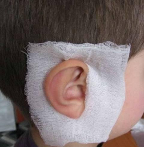 Постановка согревающего компресса на ухо ребенку алгоритм - здоровыйребенок