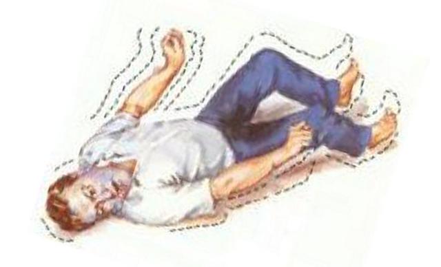 Посттравматическая эпилепсия: лечение и прогноз на выздоровление