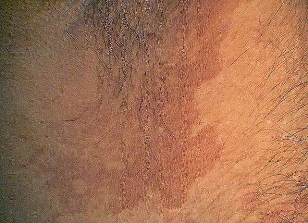 Красная сыпь на яичках и писюне у ребенка