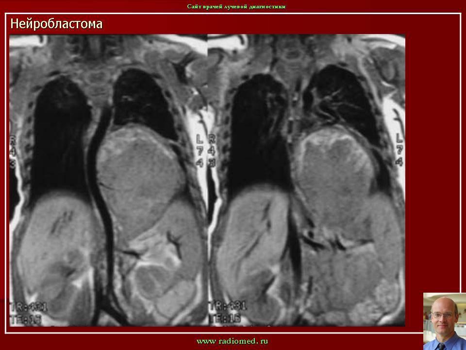Нейробластома (краткая информация)