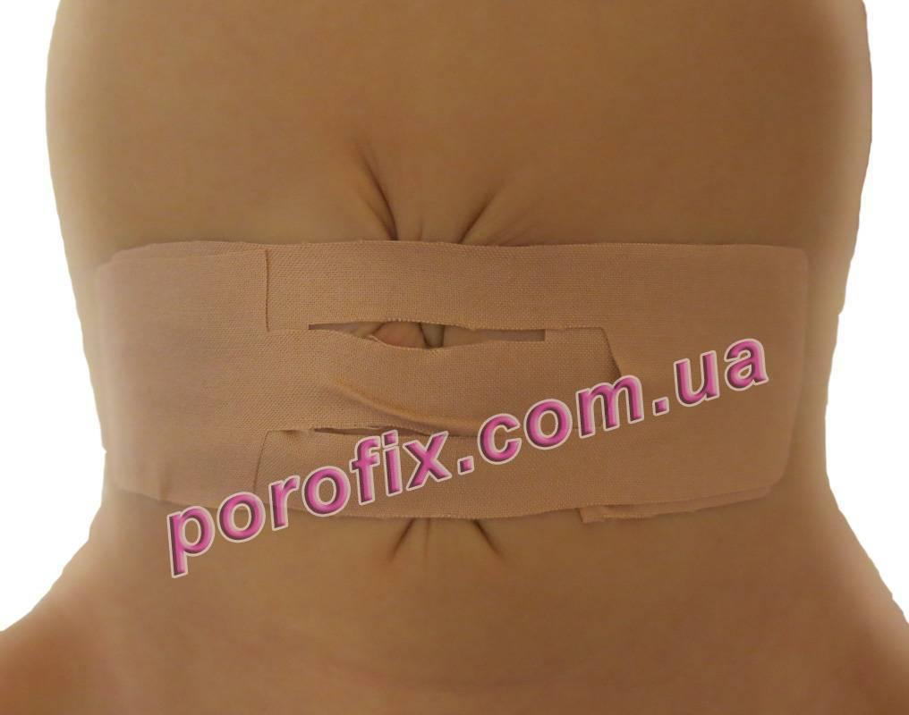 Пластырь для пупочной грыжи для новорожденных: как действует, разновидности, как заклеить пупочную грыжу, эффективность для взрослых, отзывы