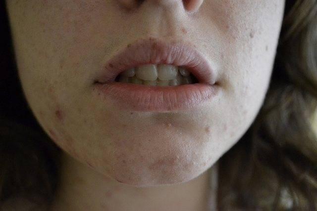 Прыщи на лице и спине - причины появления, как и чем лечить
