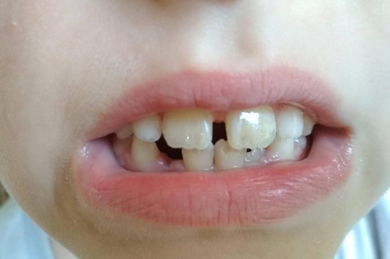 Что делать если у ребенка желтые зубы - причины и лечение. жми!