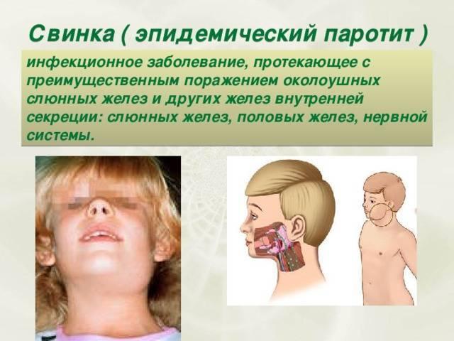 Свинка у детей: симптомы и методы лечения