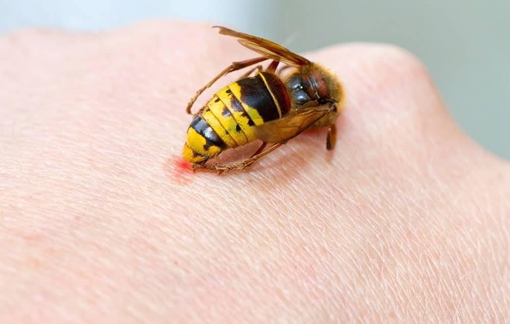 Первая помощь при укусе пчелы: что делать, как снять отек, аллергию в домашних условиях.