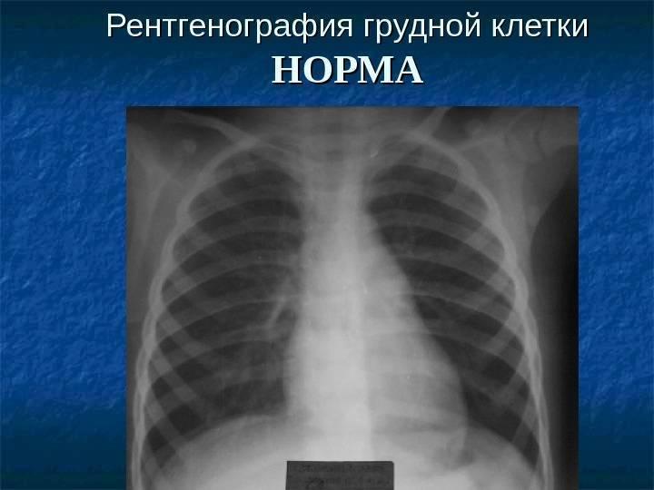 Рентген грудной клетки ребенку вредно ли
