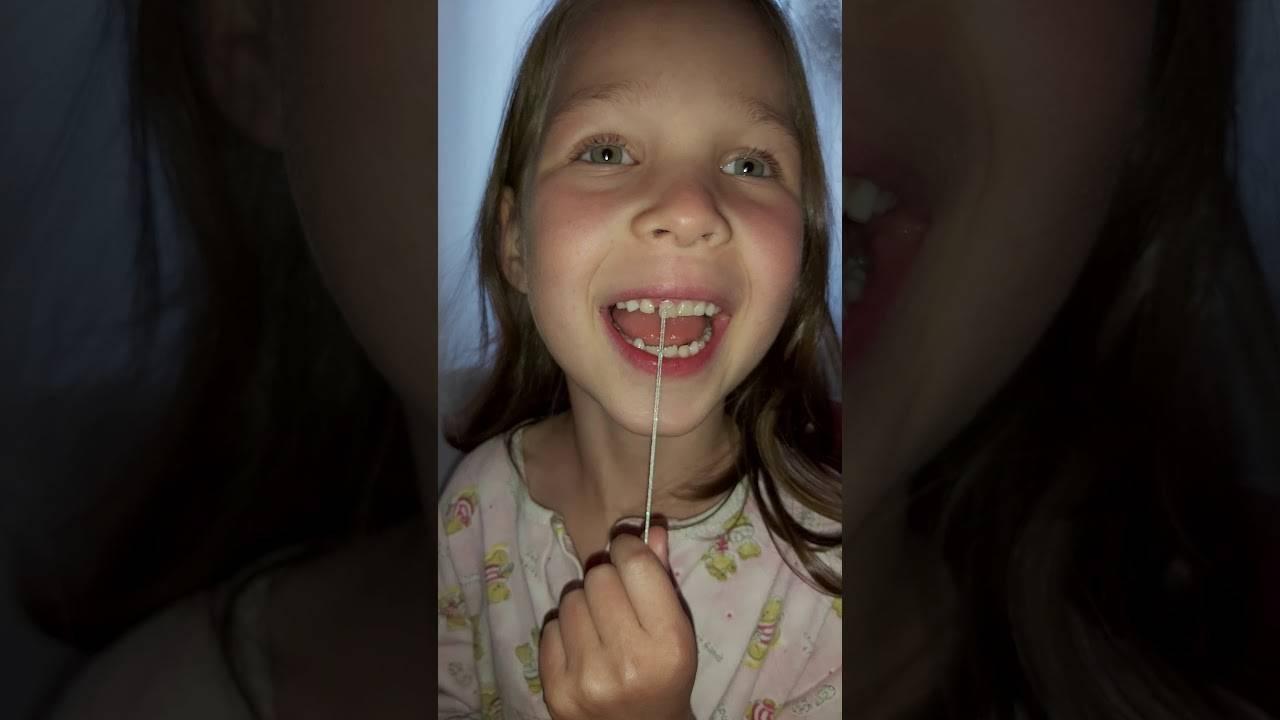 Как ребенку вырвать зуб в домашних условиях