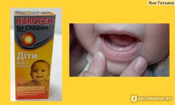 Как помочь ребенку спокойно пережить прорезывание зубов