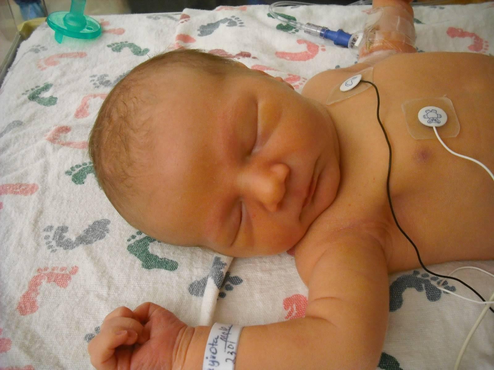 Транзиторная желтуха у новорожденных: нужно ли лечить и через сколько проходит?