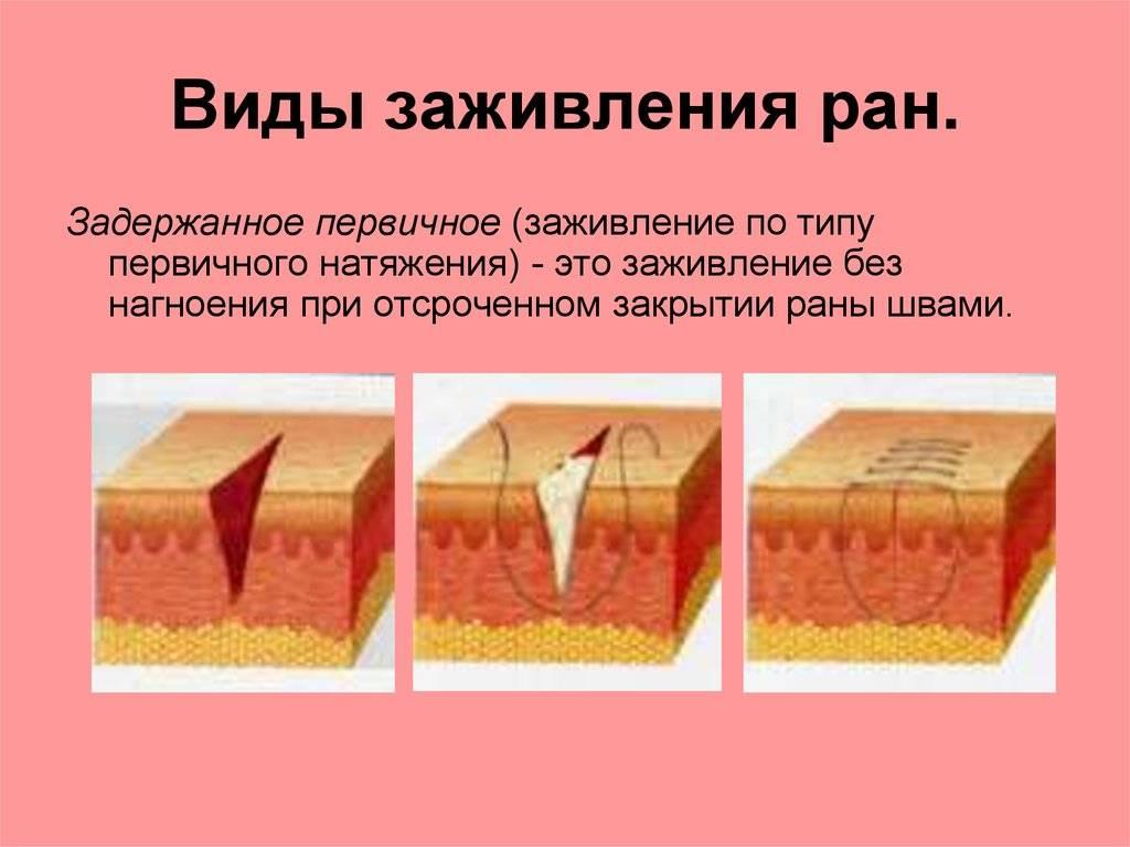 Как правильно обрабатывать ссадины у ребенка, а также царапины и другие мелкие повреждения кожи