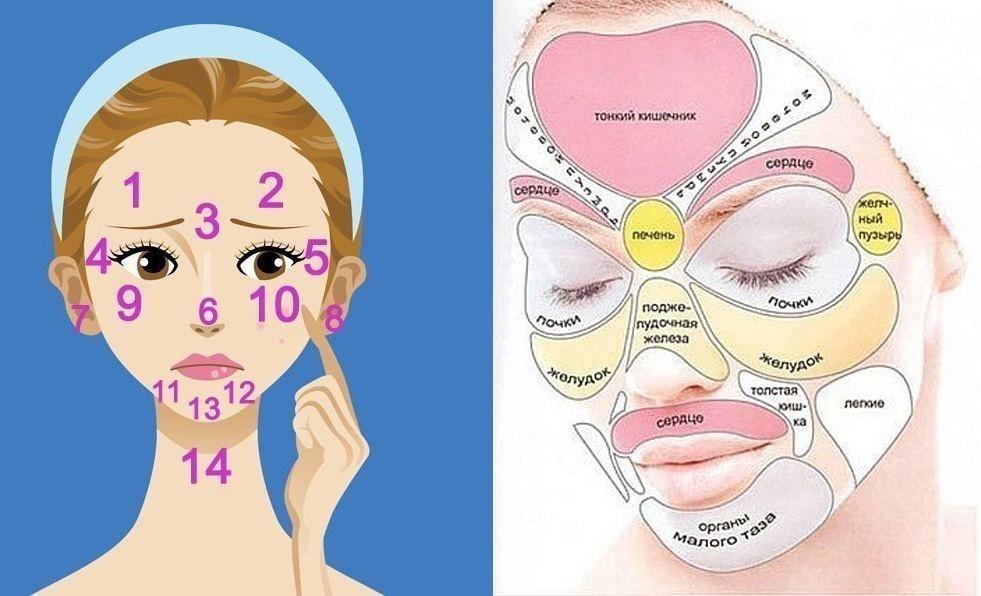 Прыщи после родов на лице и теле: что делать, как избавиться