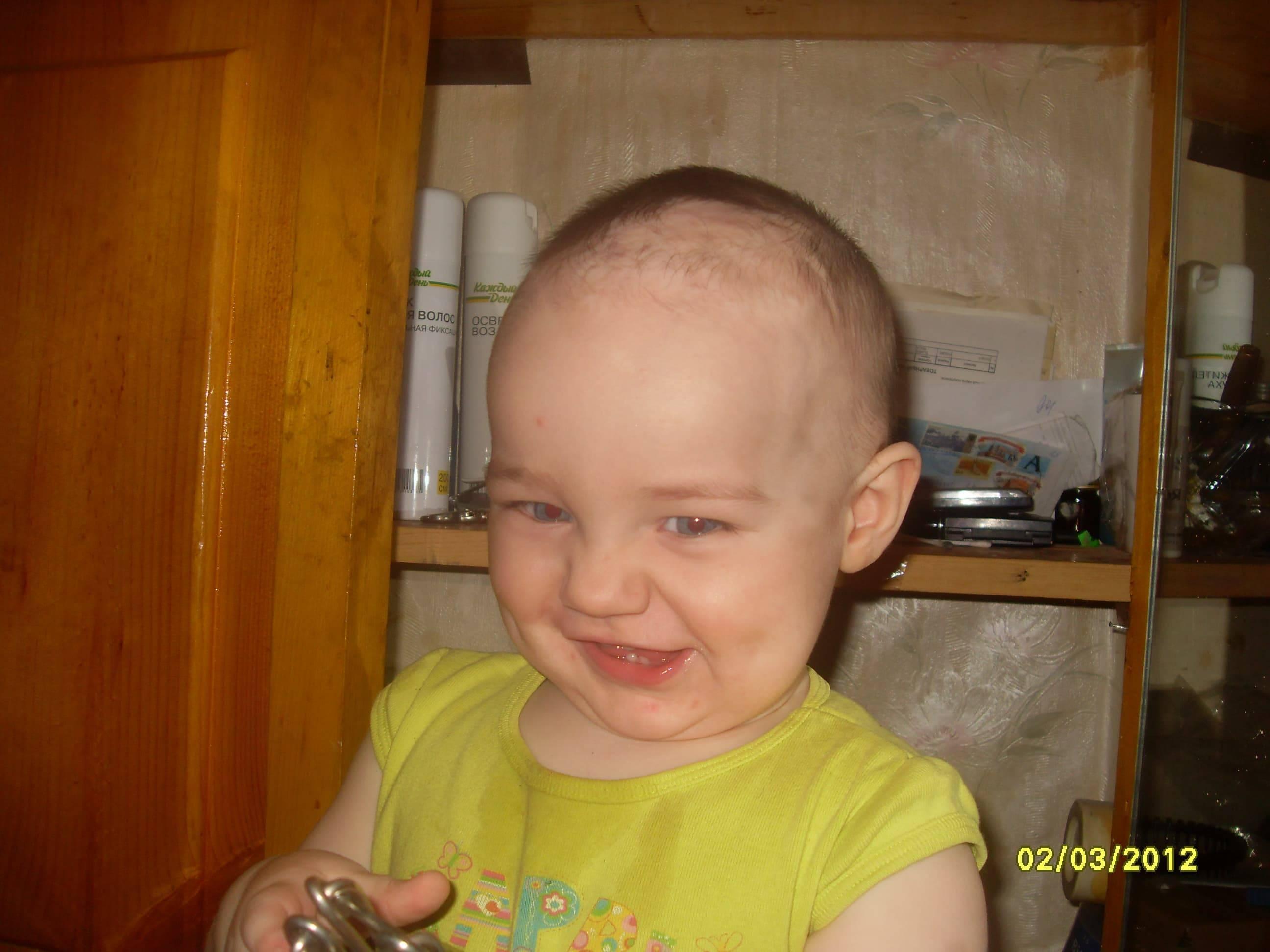 Почему волосы у ребенка растут плохо — возможные причины