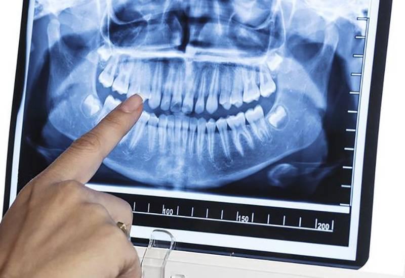 Рентген зуба при беременности - опасность, противопоказания, рекомендации