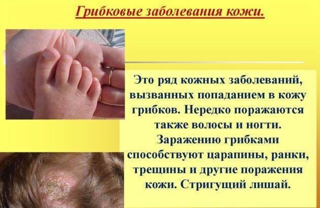 Грибовидный микоз кожи: симптомы (фото), дифференциальная диагностика и лечение