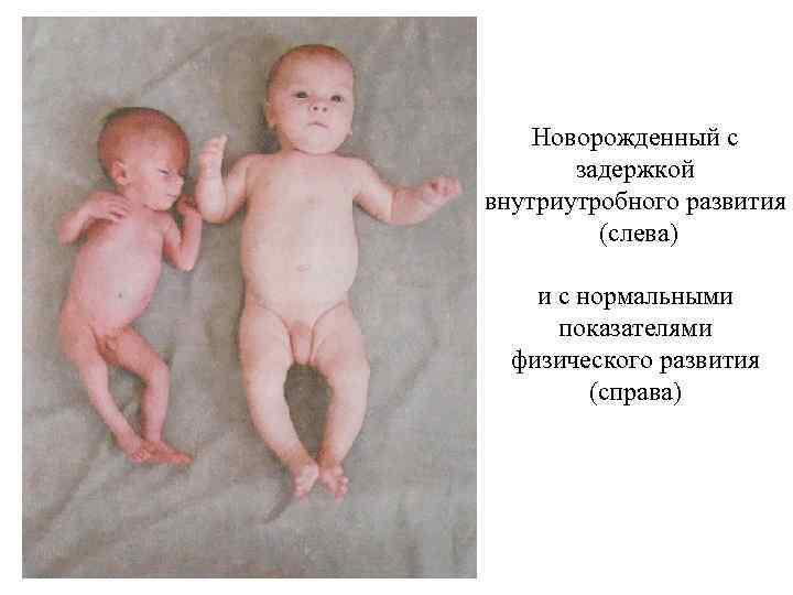 Если плод маловесный. my-doktor.ru