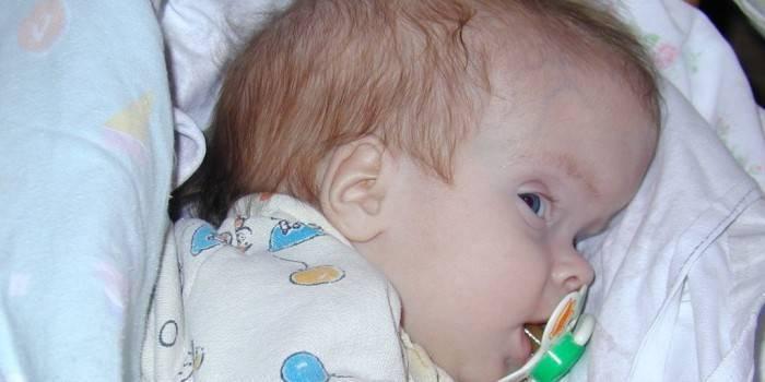 Отек головного мозга у новорожденных: причины, симптомы и последствия