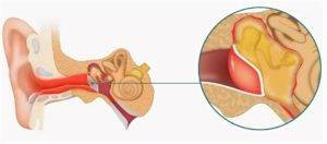 Тубоотит у ребенка: симптомы и лечение pulmono.ru тубоотит у ребенка: симптомы и лечение
