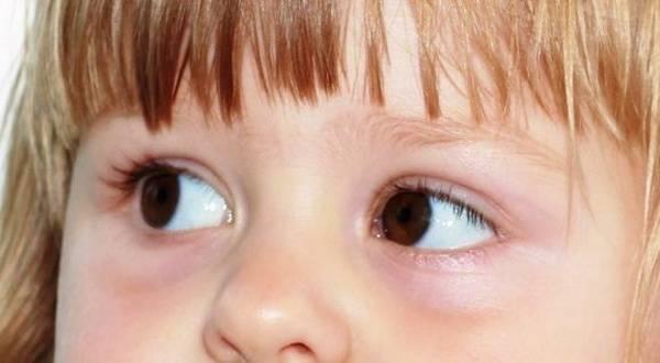 """Аллергический конъюнктивит у детей: виды, симптомы, лечение - """"здоровое око"""""""
