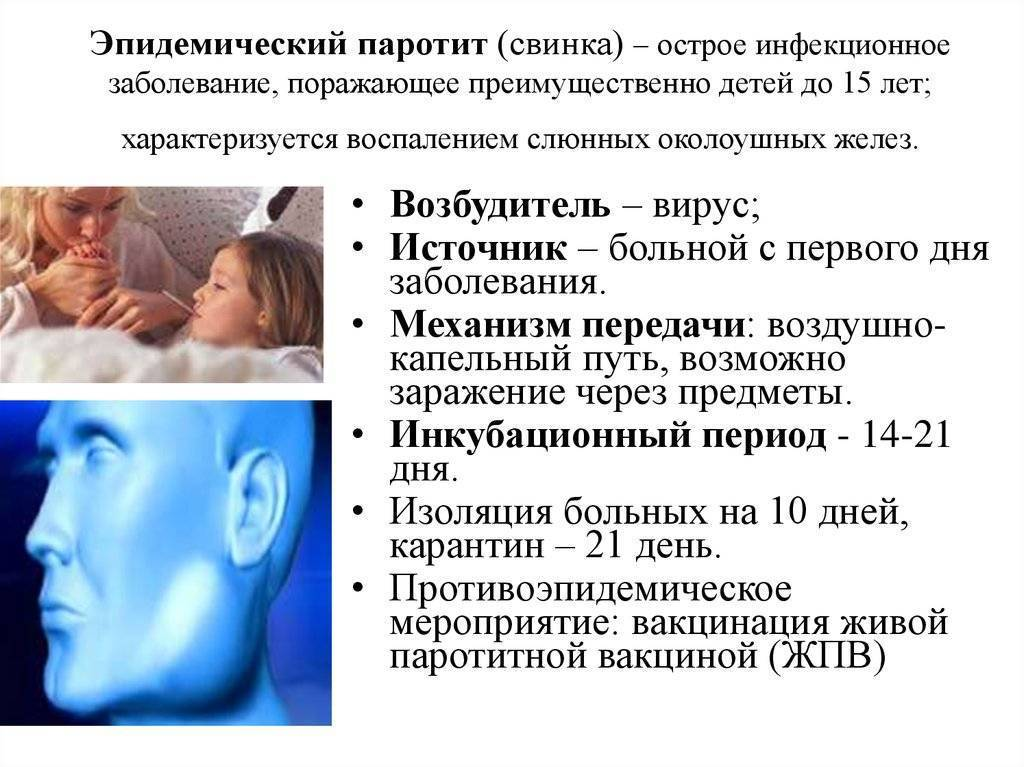 Паротит у детей симптомы и лечение: методы профилактики