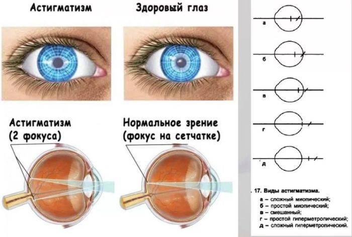 Смешанный астигматизм у детей: что это такое, причины и лечение патологии на одном и обоих глазах у малышей