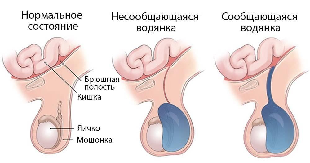 Перекрут гидатиды яичка у детей - как определить, что делать