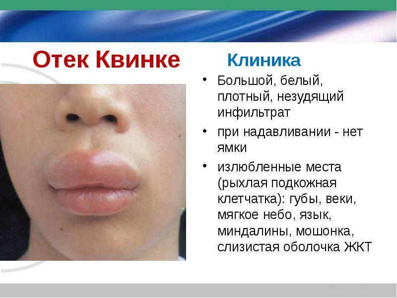 У ребенка опухла верхняя губа: ? стоматология и лечение зубов у беременных мам и детей