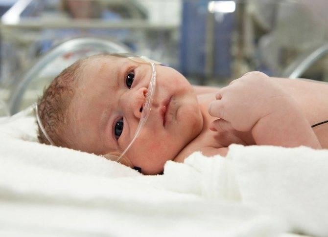 Стридор у новорожденных (врожденный) - симптомы патологического шумного дыхания у детей до года