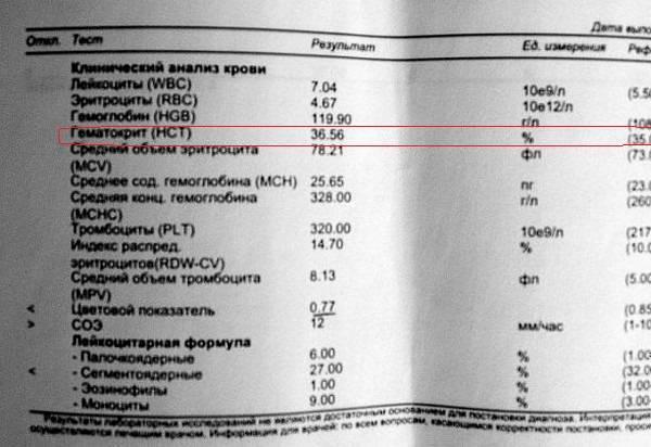 Что показывает анализ на иммуноглобулин ig e и g