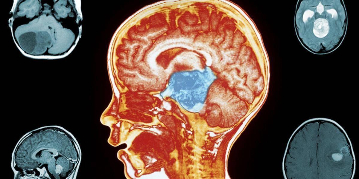 Опухоль головного мозга у детей: симптомы ранних и поздних стадий, прогноз диффузной глиомы ствола