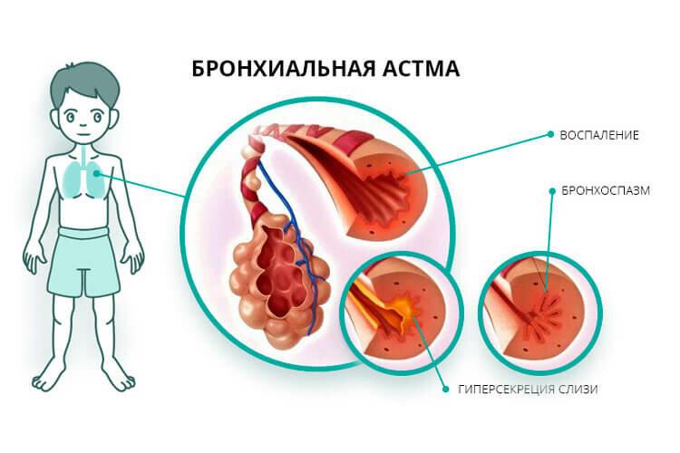 Иерсиниоз у детей - симптомы и методы лечения инфекционного заболевания